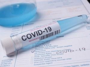 7 нови случаи на COVID-19 у нас