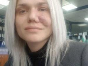 След години лутане по болници: 34-годишна жена се нуждае от 65 000 евро, за да живее